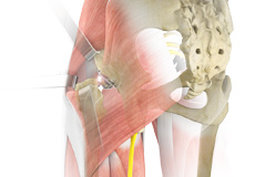 Complex Hip Replacement
