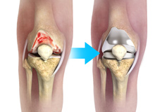 Complex Knee Replacement