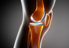 Correction of a Painful Knee Replacement