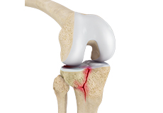 ORIF of the Knee Fracture
