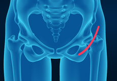 Outpatient and Rapid Recovery Hip Replacement